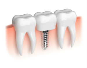 Implant Dentistry | Lakeview Family Dental | Dentist Waterford, MI