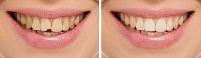 Dental Bonding | Dr. Smida | San Rafael, CA Dentist
