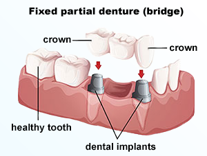 Dental Bridges | Dr. Smida | Marin Advanced Dental Care | San Rafael, CA Dentist