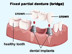Dental Bridges   Dr. Smida   Marin Advanced Dental Care   San Rafael, CA Dentist