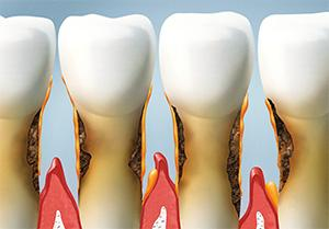 Gum Disease    Dentures   Dr. Smida   Marin Advanced Dental Care   San Rafael, CA Dentist