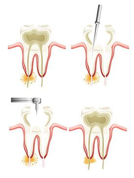 Root Canals | Dr. Smida | Marin Advanced Dental Care | San Rafael, CA Dentist