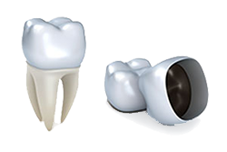 Dental Crowns | Dr. Smida | Marin Advanced Dental Care | San Rafael, CA Dentist